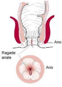 Ragade anale